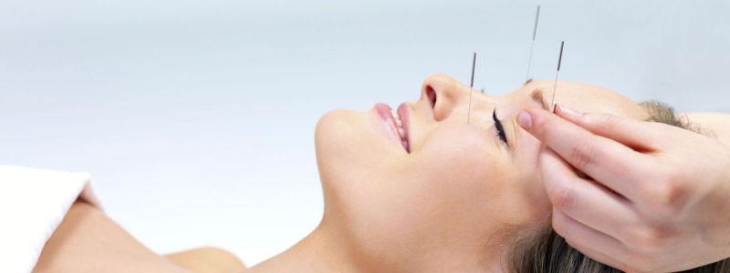 acupuntura-medicina-integral-sevilla